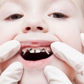 Trẻ em thường gặp các vấn đề về răng miệng